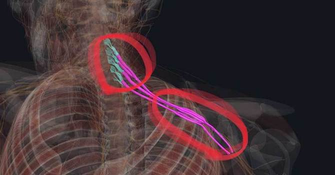 The Nerve Problem You Didn't Know You Had